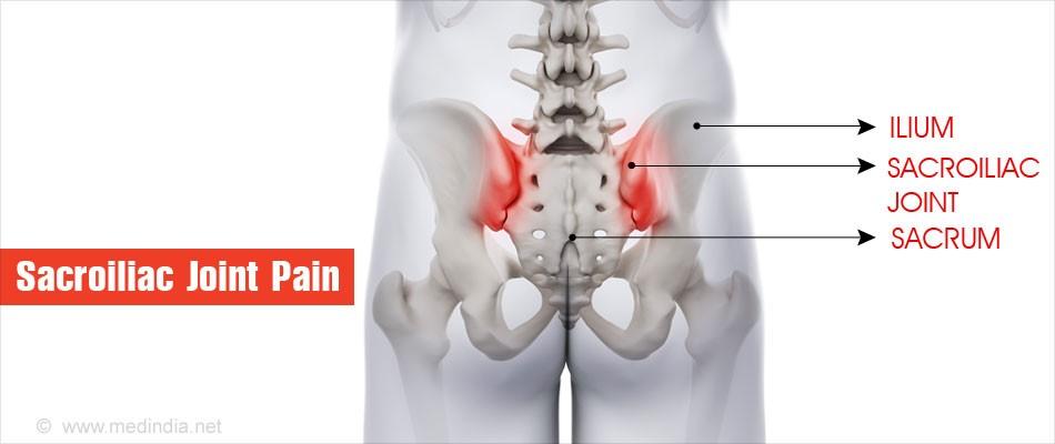 Ini adalah gambaran nyeri sacroiliac joint