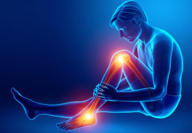 osteoarthritis Ba'asyir