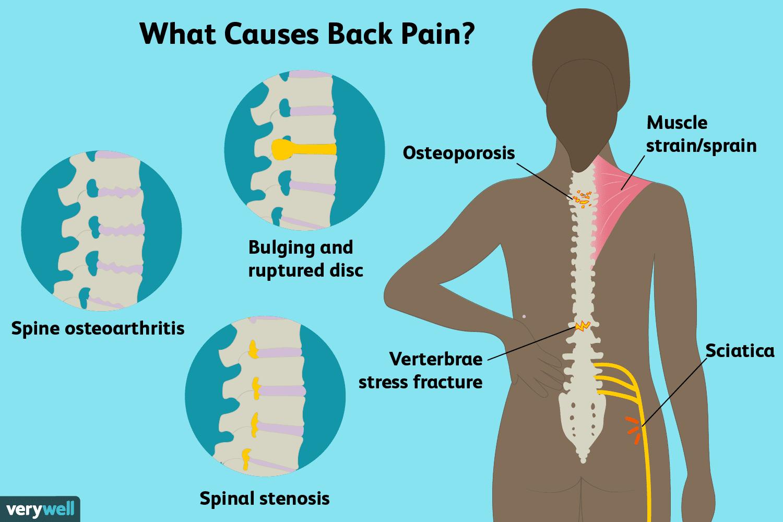 Penyebab Nyeri di punggung