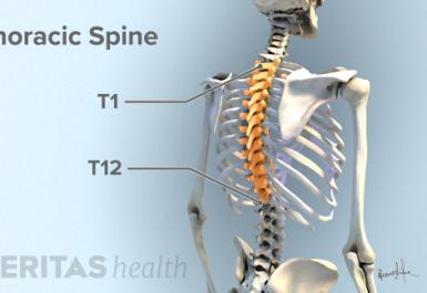 Sakit tulang belakang atas