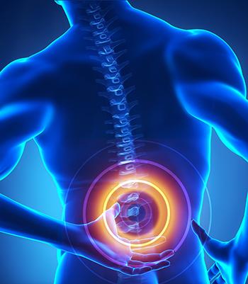 Spinal stenosis adalah