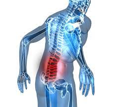 Spina bifida acculta
