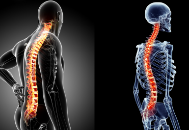 Spinal adalah