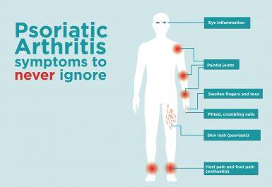Psoriasis arthritis masalah autoimun pada sendi