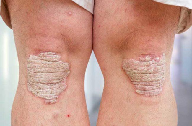Psoriasis arthritis pada lutut