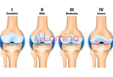 Arthritis lutut adalah radang sendi pada lutut