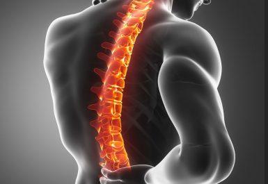 nyeri tulang belakang hiperlordosis