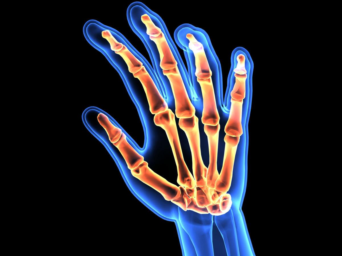 Rheumatoid arthritis Indonesia