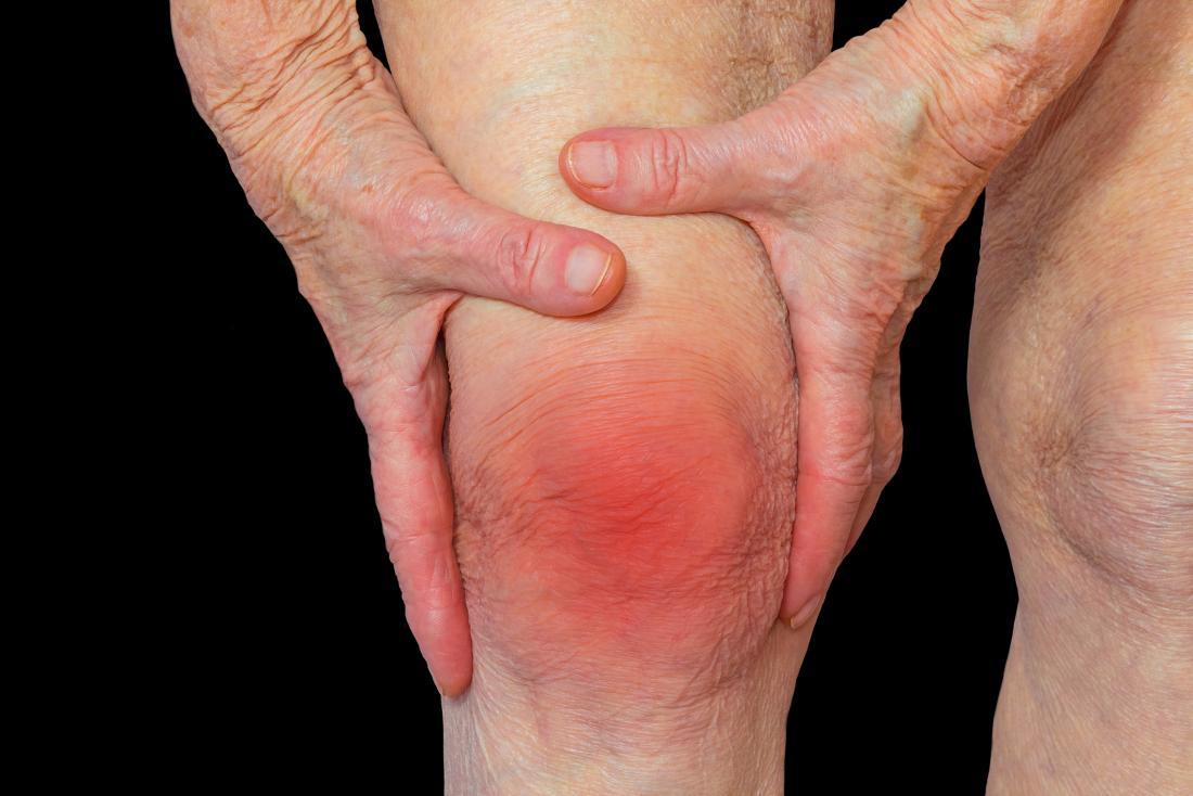Radang sendi rheumatoid arthritis