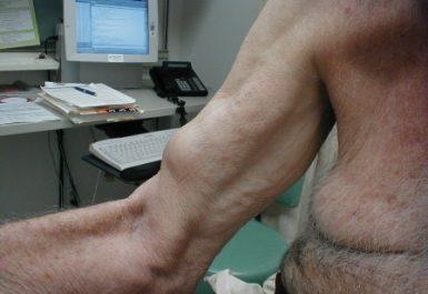 Cedera otot pada lengan