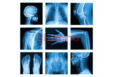 Hasil persiapan pemeriksaan diagnostik rontgen