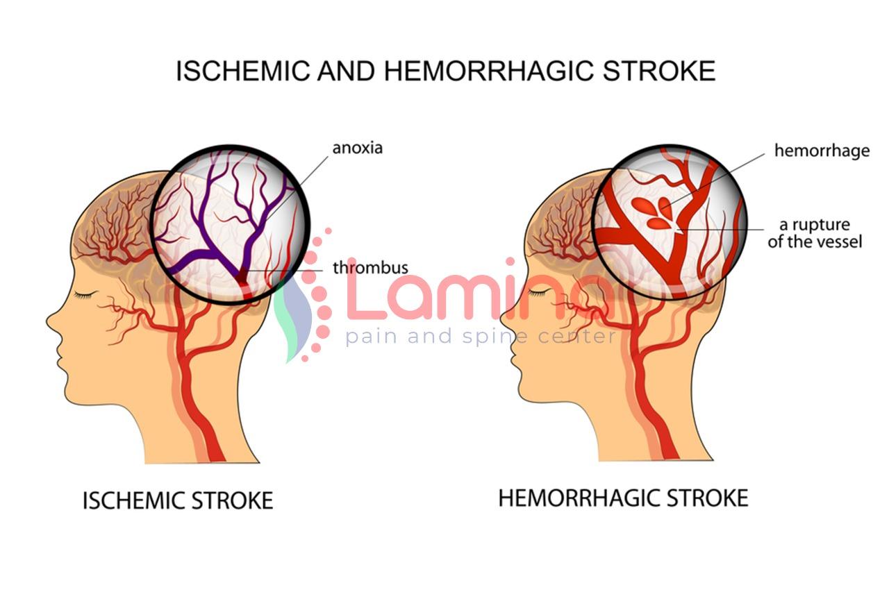 rehabilitasi medik pasca-stroke