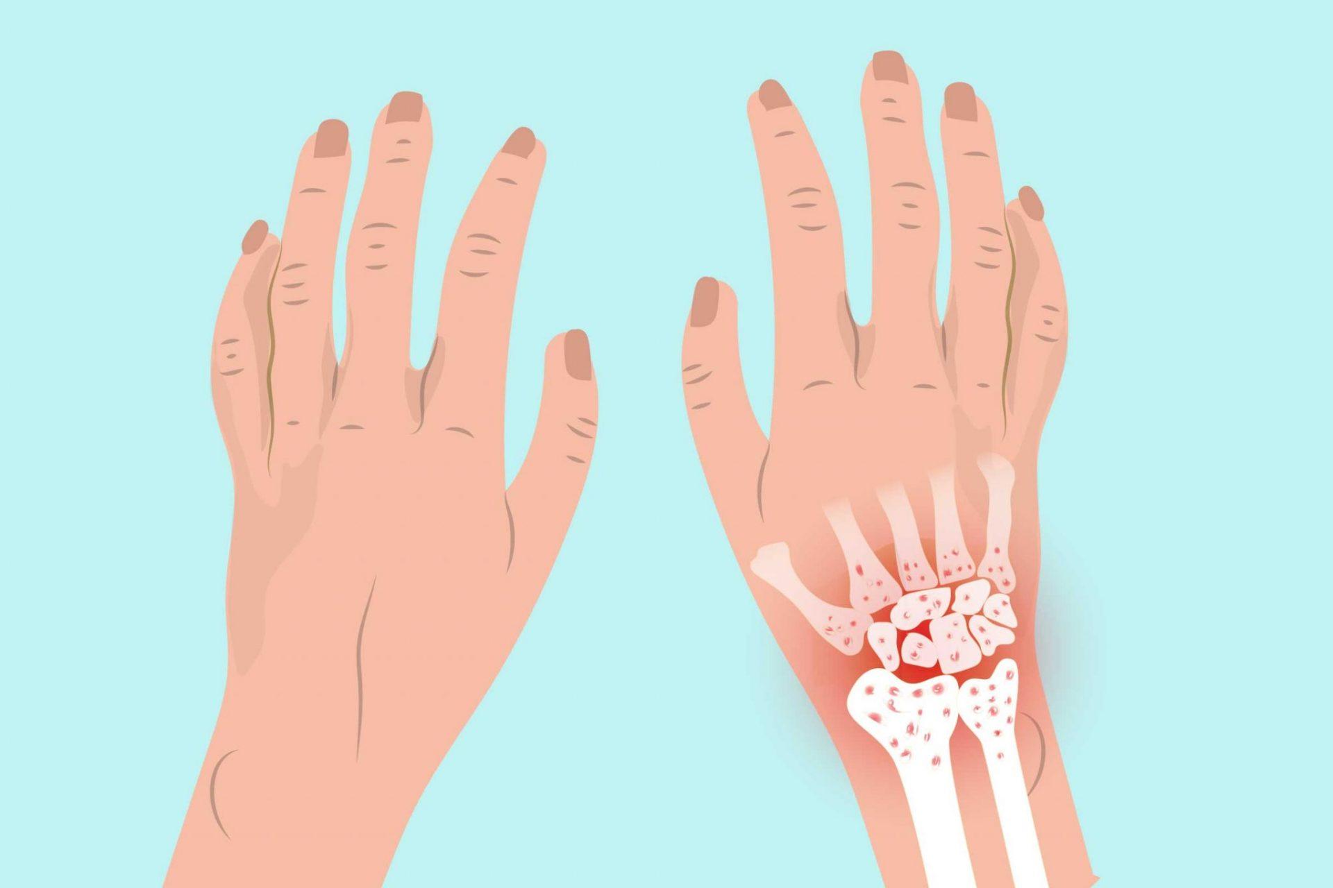 Sakit pergelangan tangan